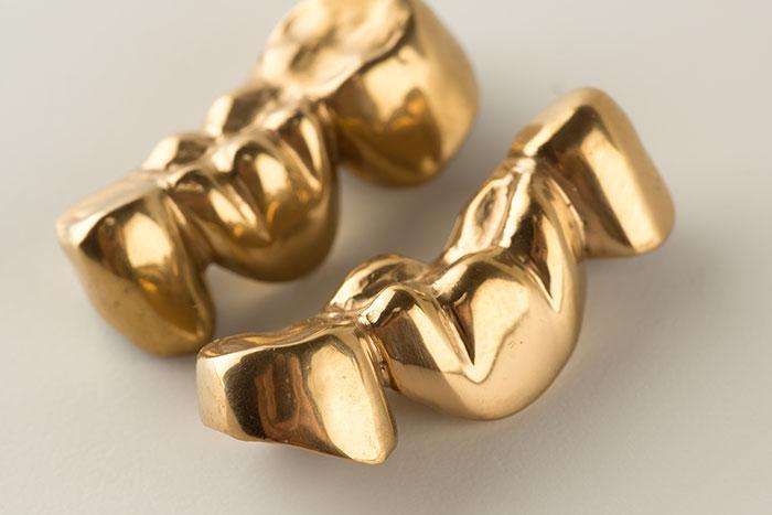 Dentalgoldankauf aus Köln