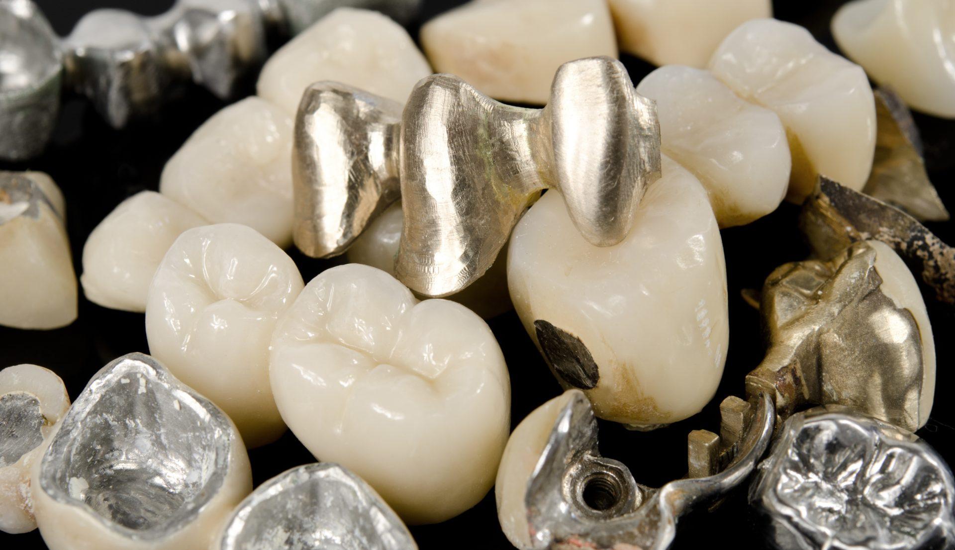 Was ist Zahngold, Zahngold ankauf, Dentalgold, Aurax Edelmetalhandel GmbH