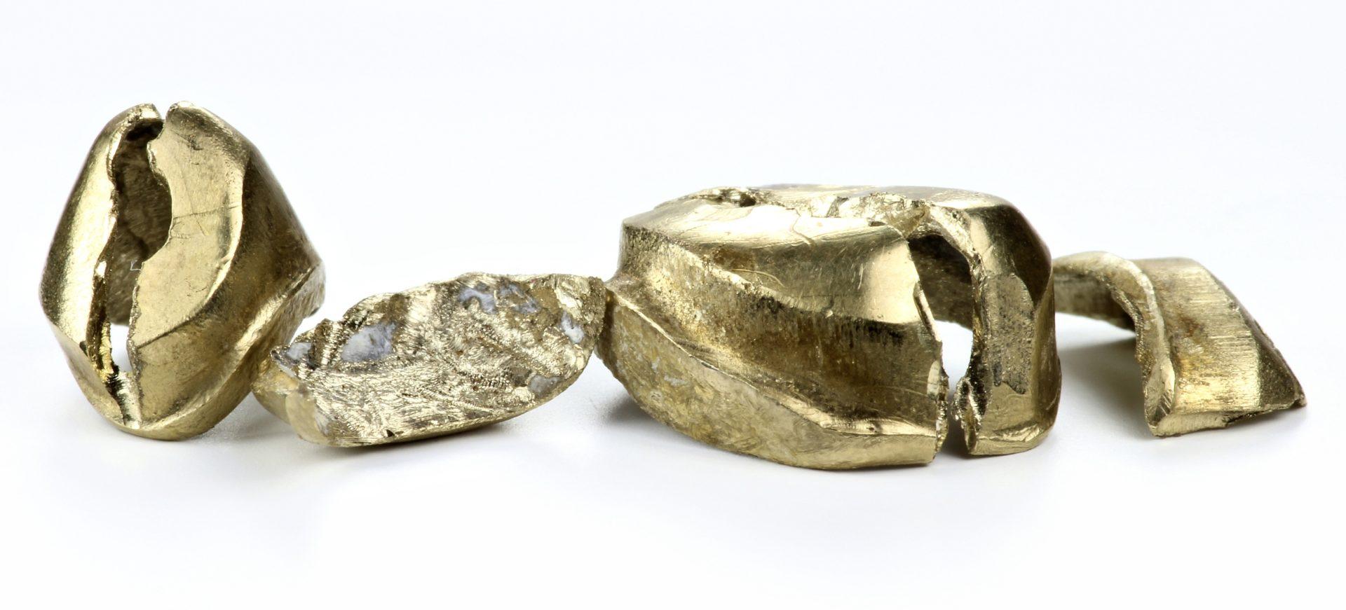 Risikofrei Zahngold verkaufen – Da sind Sie bei uns genau richtig!_Zahngold-verkaufen_Zahngold-ankaufen_Dentalgold-ankaufen_Goldankauf_Aurax Edelmetallhandel GmbH_Bargeld-fuer Zahngold
