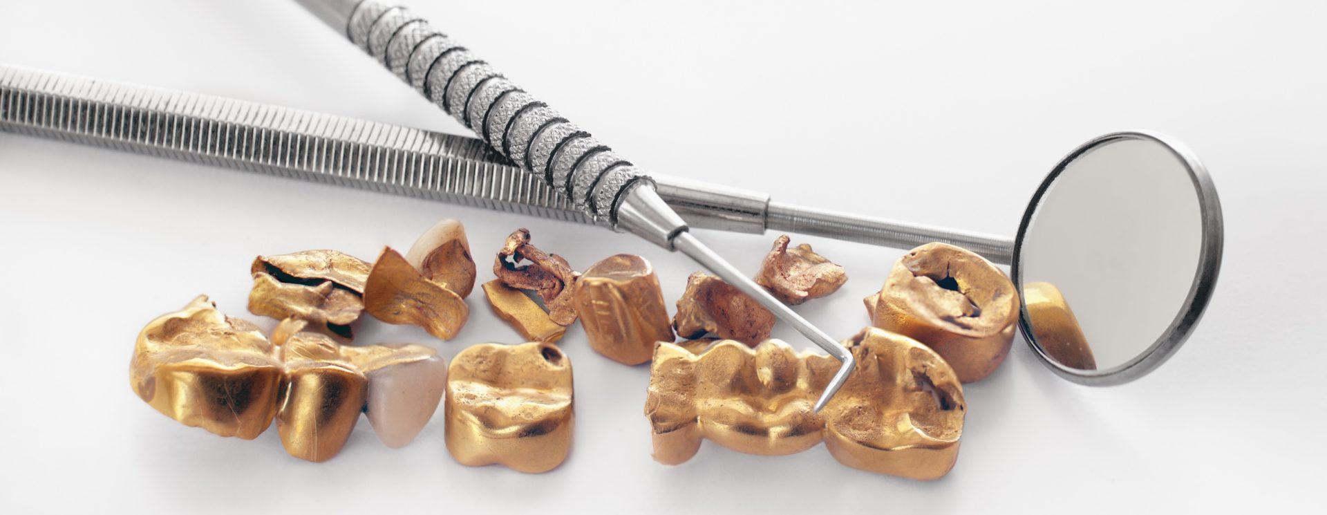 Zahngold-verkaufen_Privat-und Geschäftskunden Zahngold-verkaufen_Zahngold-ankaufen_Aurax Edelmetallhandel GmbH